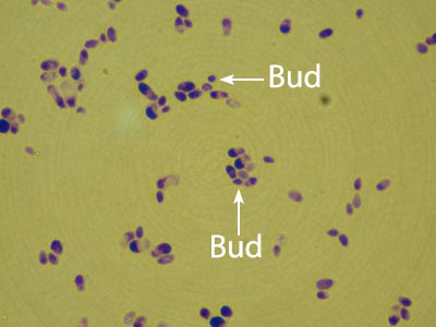 Candida Albicans Image